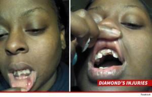 0310-angie-stone-daughter-lip-teeth-facebook-7